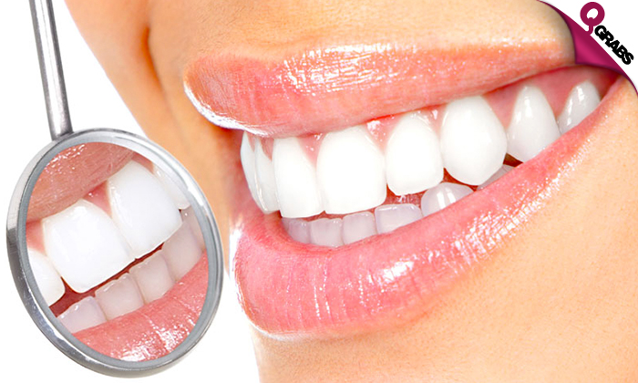 Lucida Dental Center Deal Of The Day
